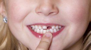 отсутствие переднего зуба