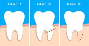 Этапы резекции корня зуба