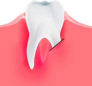 результат резекции корня зуба