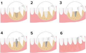в Краснодарском крае имплантацию зубов практикуют во всех современных стоматологических клиниках