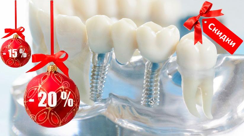 установка зубного импланта со скидкой
